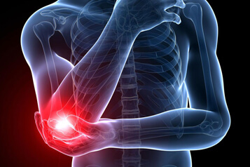 Elbow joint replacement surgery is necessary because of the following conditions