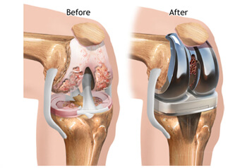 Benefits after Joint replacement Surgery
